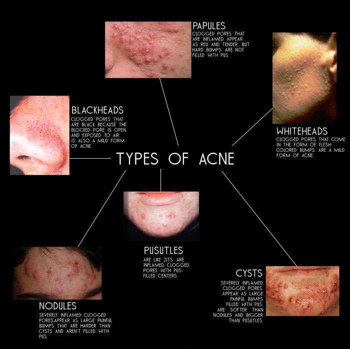 types of acne images