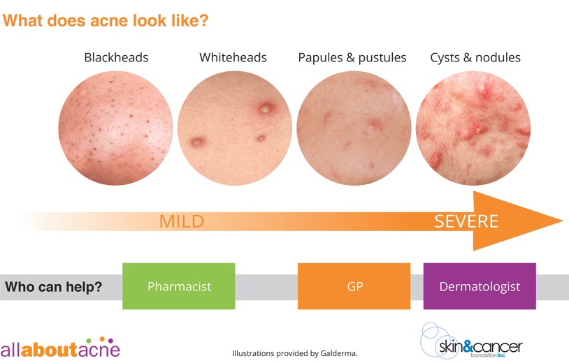 what is the acne types